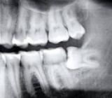 Рентгенографические материалы